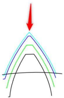 Große Profilverschiebung führt zu einem spitzen Zahn