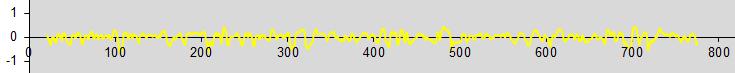 Bandpass: herausgefilterter hochfrequenter Anteil