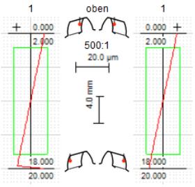 Flankenliniendiagramme für Zahn 1